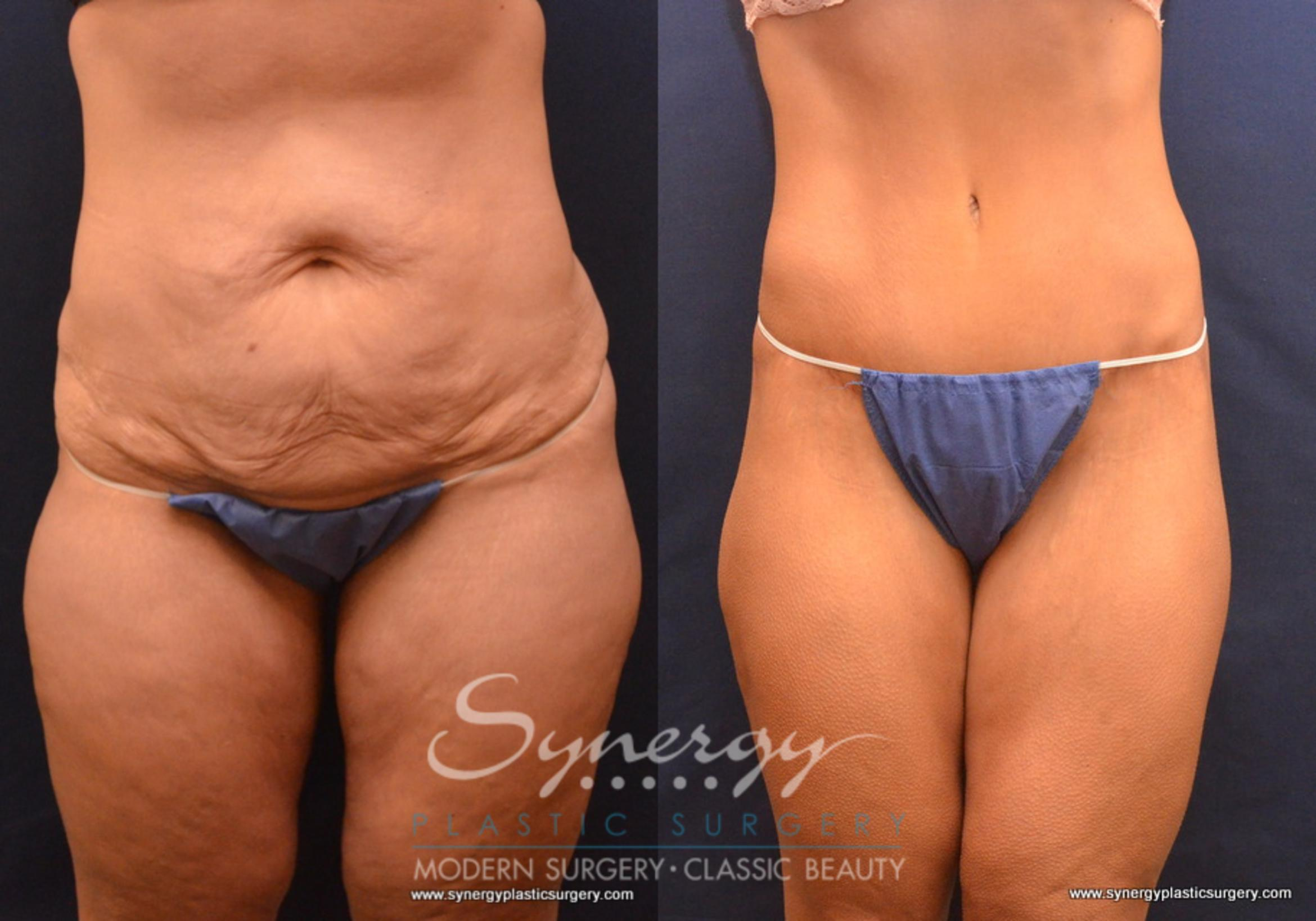 Post Weight Loss Surgery Before & After Photo Gallery   Round Rock ...